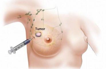توده يا تومور پستان