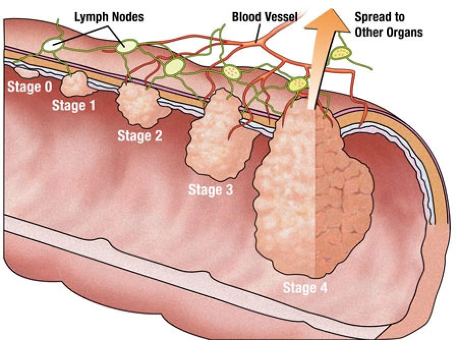شماتیک موقعیت و شکل سرطان در روده