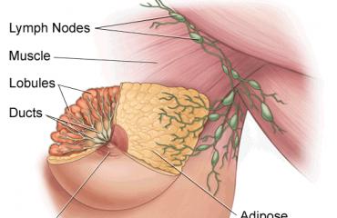 شماتیک سرطان پستان