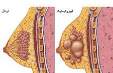 تصویر شماتیک سرطان معده از بیرون بدن