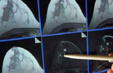 عکس ماموگرافی سینه