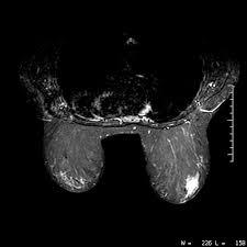 عکس از MRI سینه
