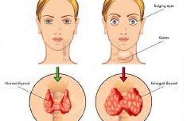 شماتیک قبل و بعد از جراحی تیروئید