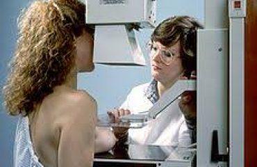 انجام ماموگرافی