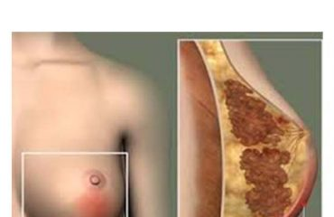 شماتیک عفونت پستان