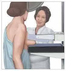 شماتیک ماموگرافی سرطان پستان