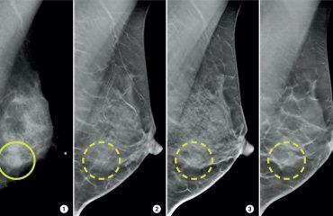 عکس ماموگرافی از سینه