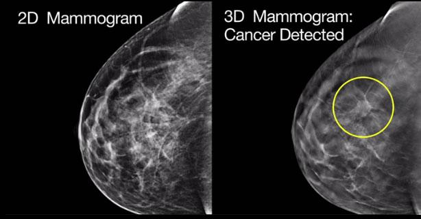 عکس از ماموگرافی