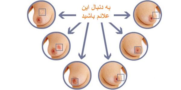 شماتیک تشخیص سرطان سینه
