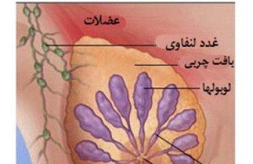 شماتیک درمان سرطان سینه