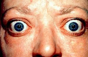 عوارض هایپرتیروئیدی (پرکاری تیروئید)