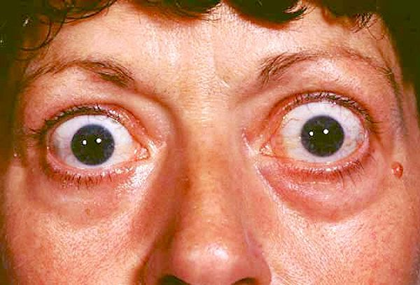 درمان بیماری گریوز