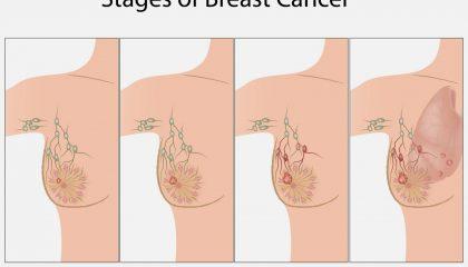 مراحل سرطان سینه