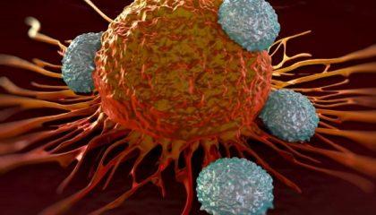 عوامل سرطان سینه