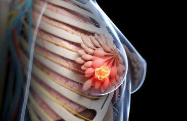 غربالگری سرطان سینه