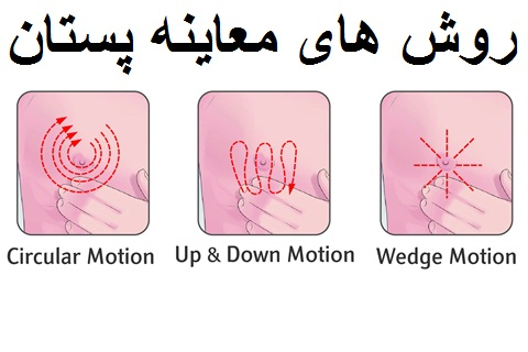 معاینه سرطان پستان