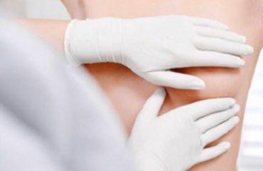 معاینه پستان توسط پزشک