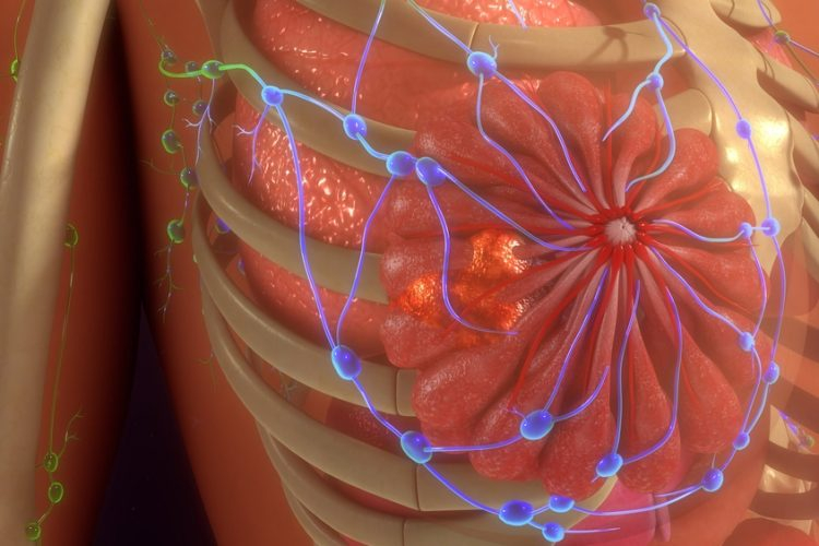 سرطان های پستان هورمونی