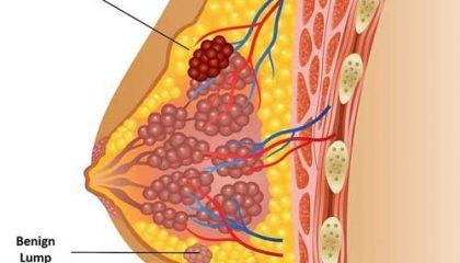توده در سینه جراح سرطان پستان