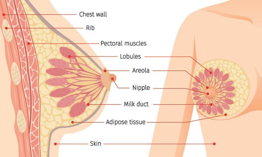 ابتلا به سرطان پستان