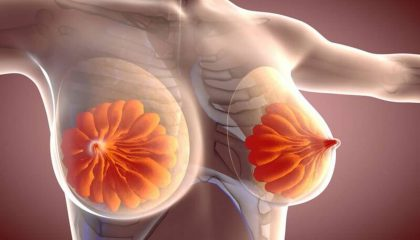 پیشگیری از سرطان سینه