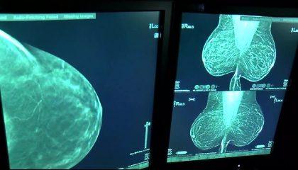 ماموگرافی تشخیص سرطان سینه