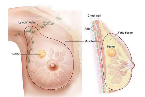 جراح سرطان پستان
